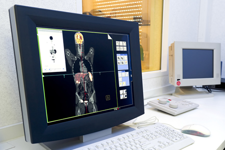 400 Million Medical Images Are Freely Accessible Online Via Unsecured PACS